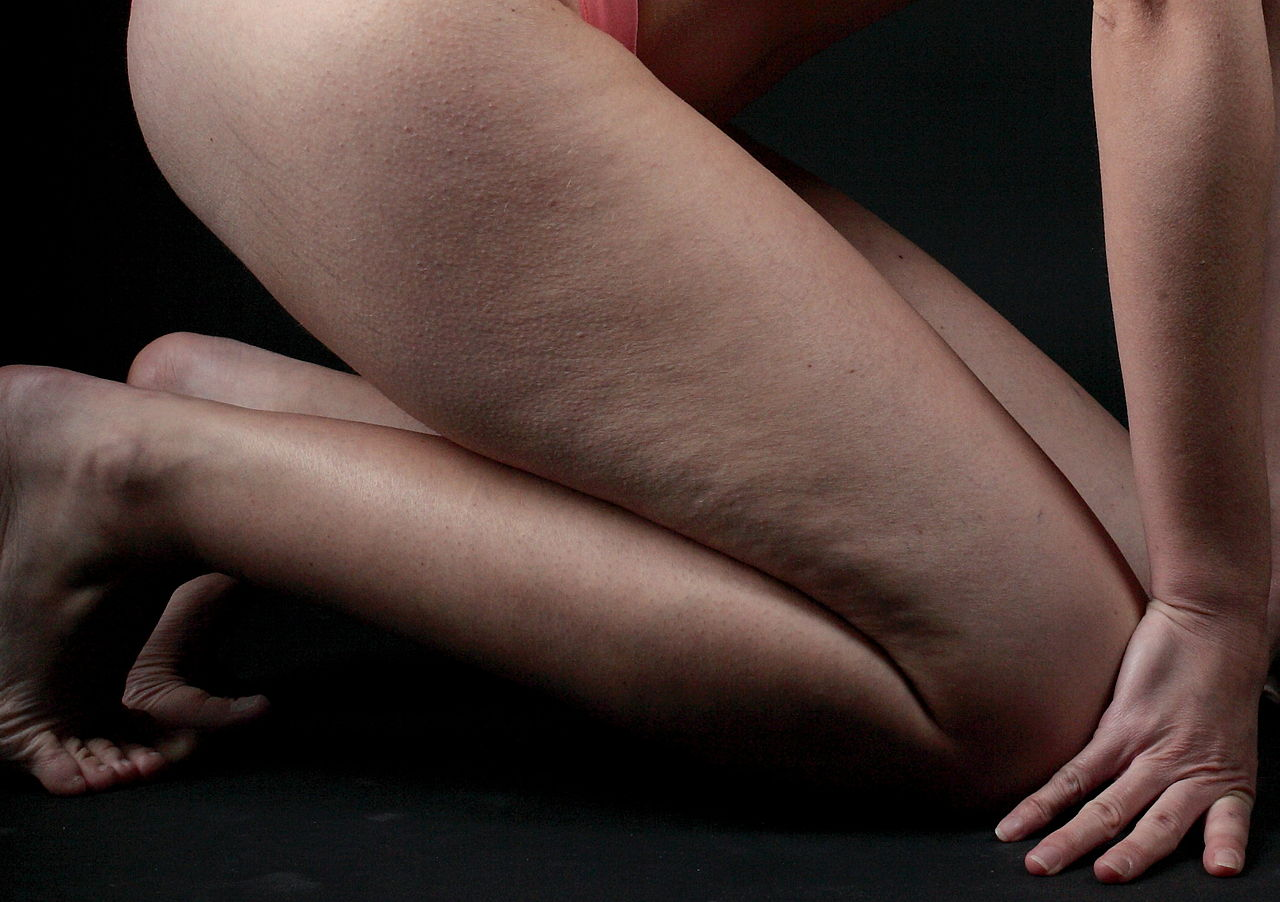 Cellulite-PanciaLeggera
