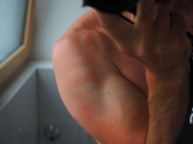 triclosano-effetti-sulla-salute-pelle