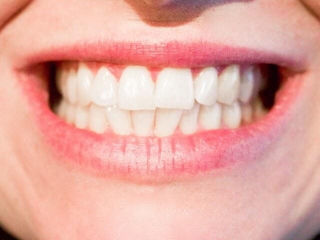 denti-sintomo-carenza-di-vitamine-e-sali-minerali