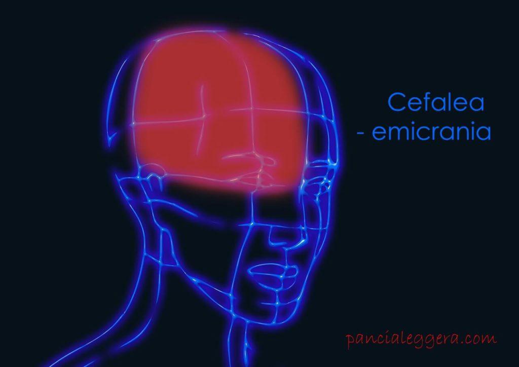 cefalea emicrania