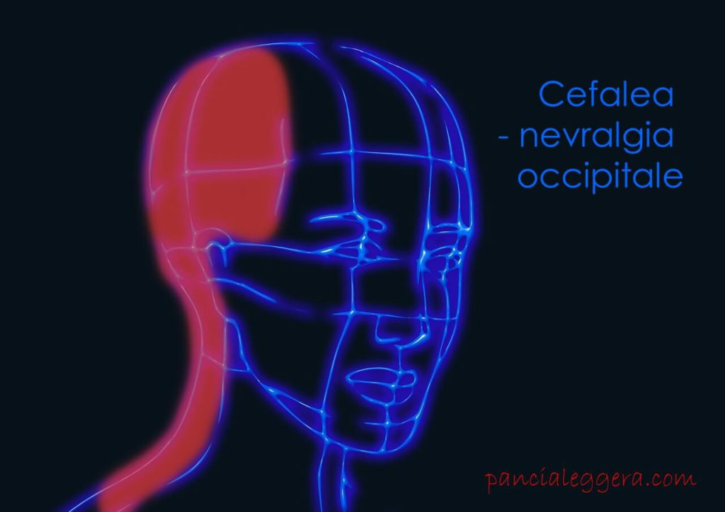 cefalea nevralgia occipitale