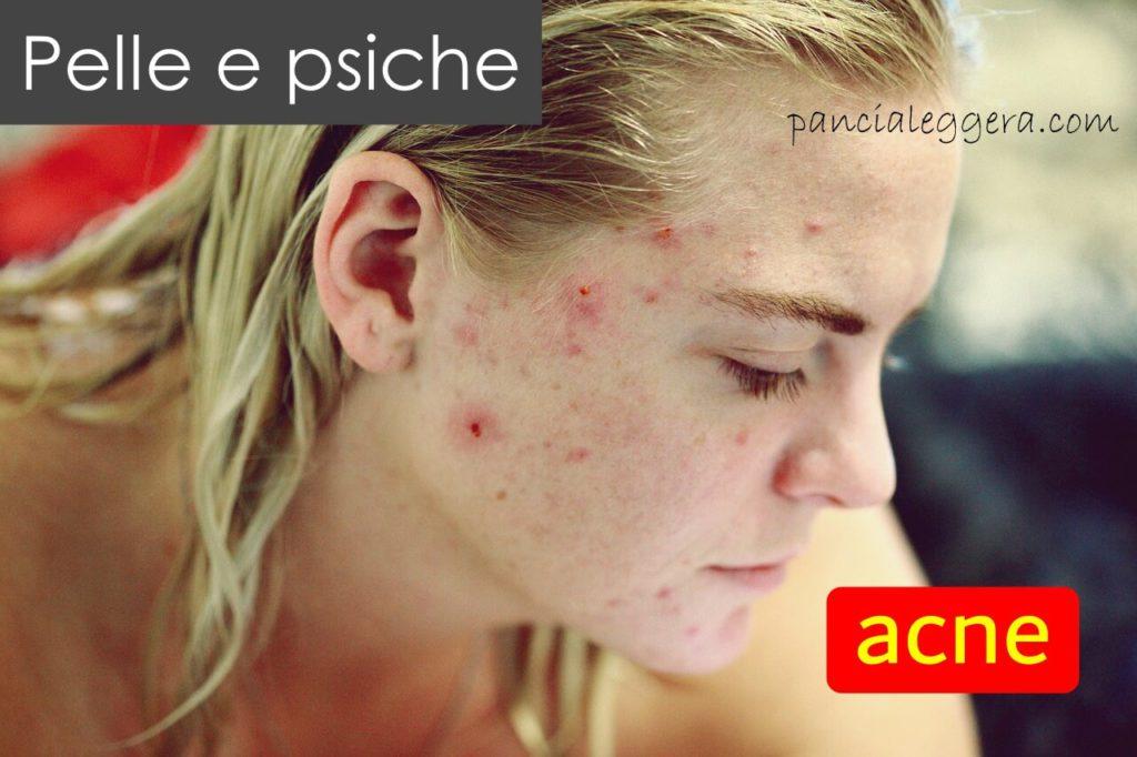pelle e psiche acne