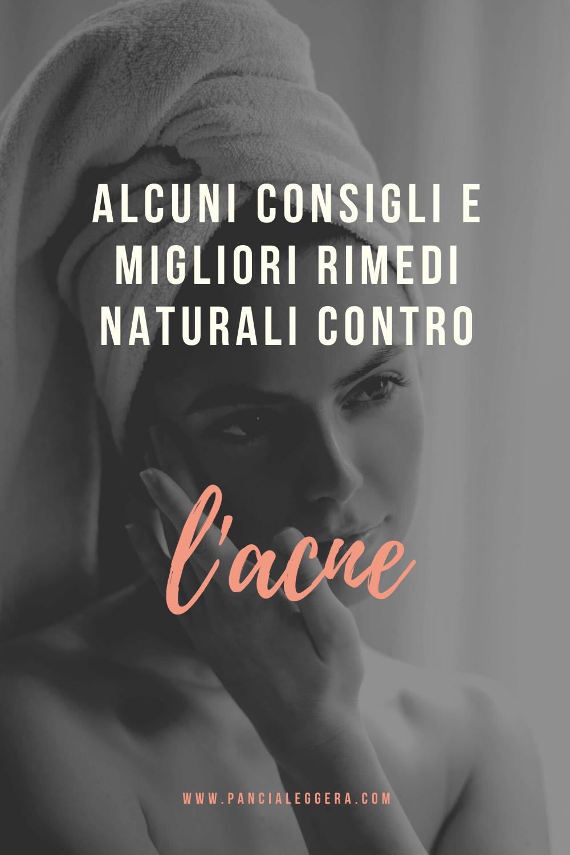 Alcuni consigli efficaci ed i migliori rimedi naturali contro l'acne