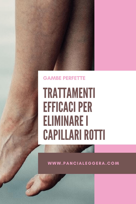 Capillari rotti sulle gambe: cause e trattamenti efficaci per eliminarli