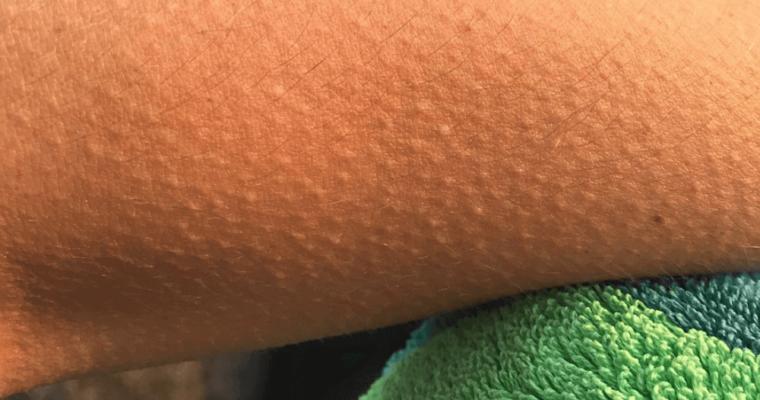 Perché viene la pelle d'oca – 5 cause sorprendenti e quando preoccuparsi